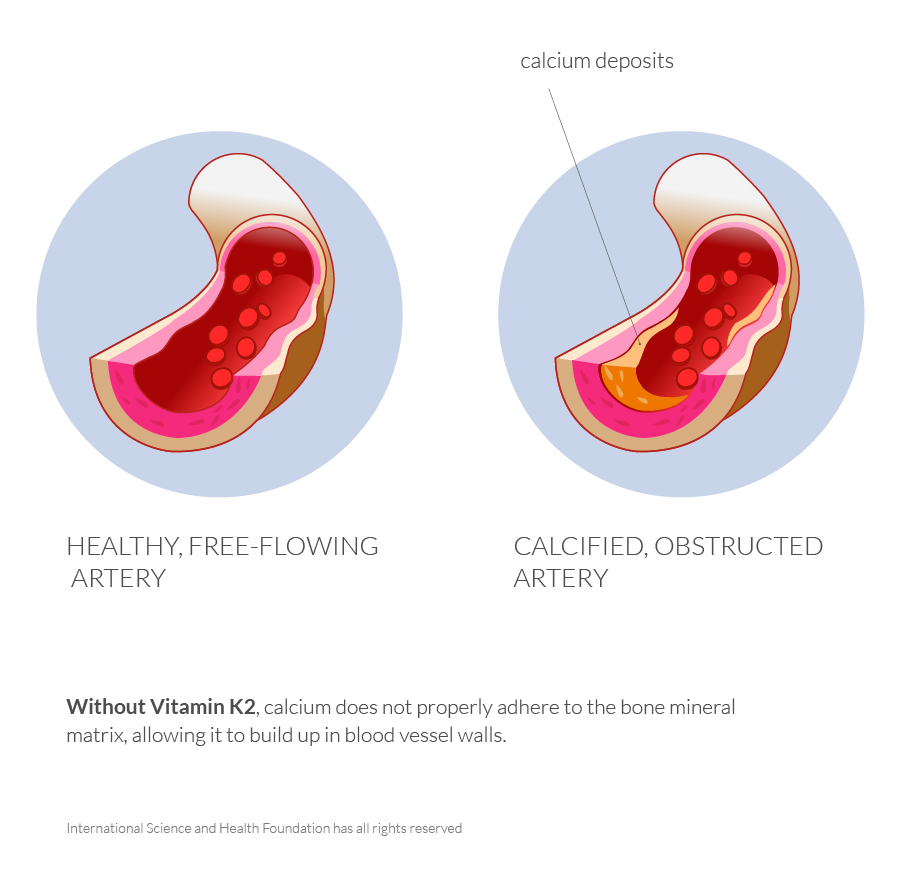 healty and calcified artery